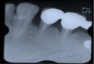歯周組織再生療法症例05-治療前