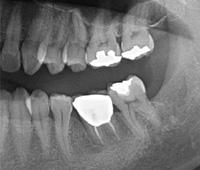 歯牙移植症例01-治療6