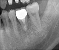 歯牙移植症例02-治療6