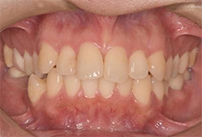 ホワイトニング症例01-治療前