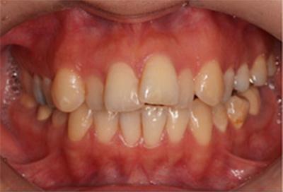 ホワイトニング症例02-治療前