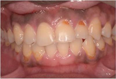 ホワイトニング症例03-治療前