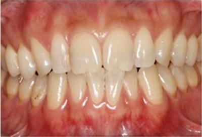 ホワイトニング症例04-治療前