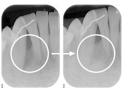 歯周組織再生療法 症例01