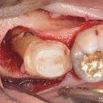 歯周組織再生療法 骨造成の現実