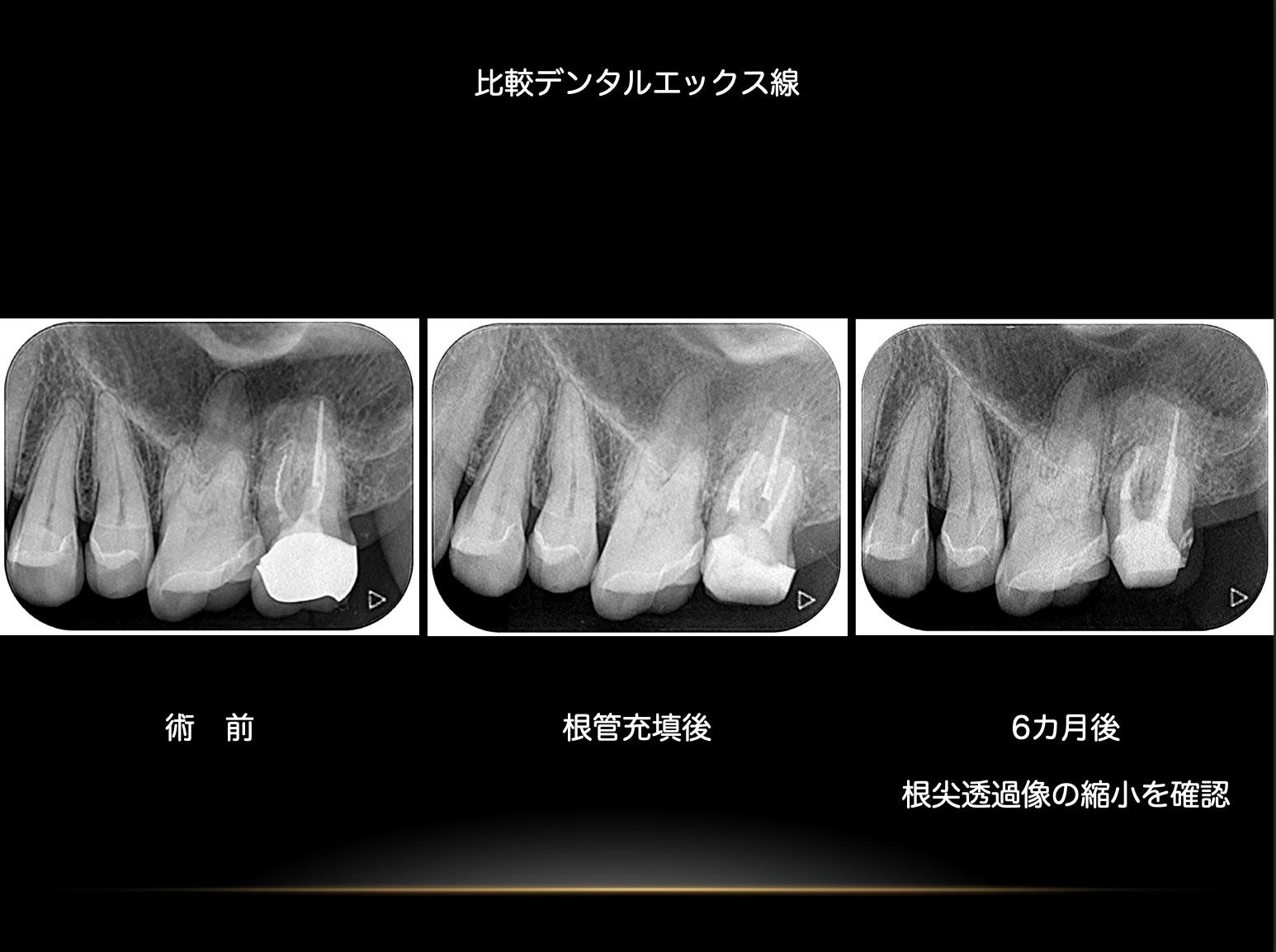 pic2020-04-20-15-23-58.jpg